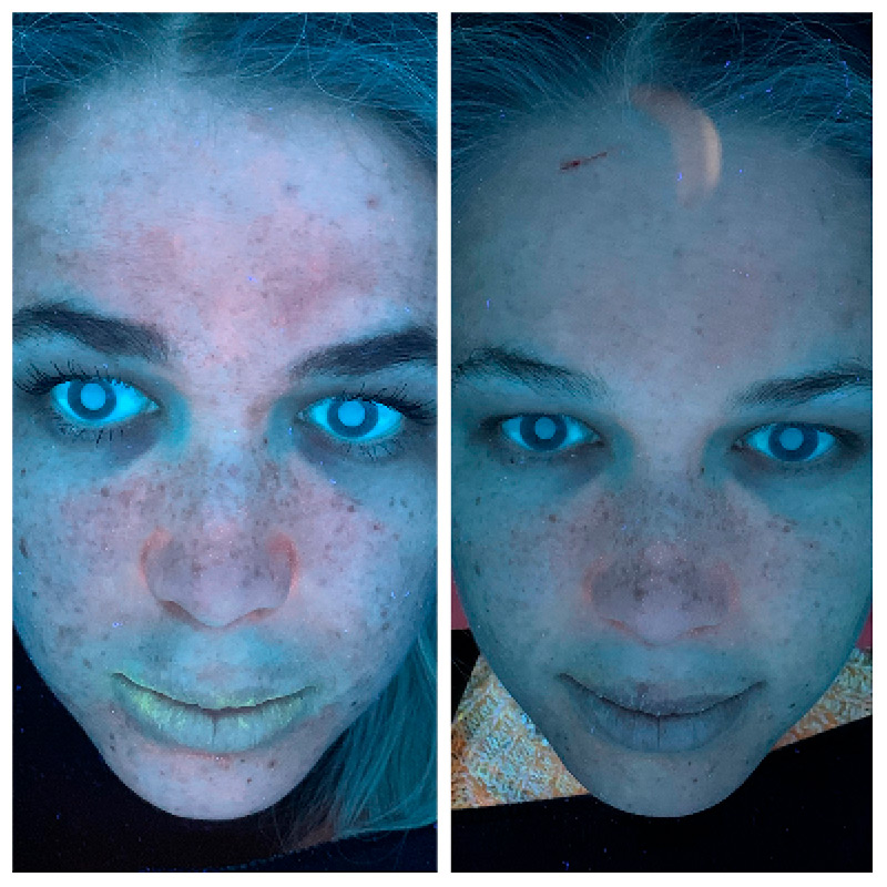 Epidermis & Sage Before & After